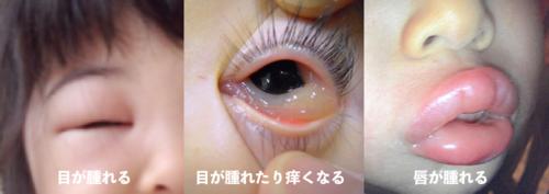 腫れる 目 が